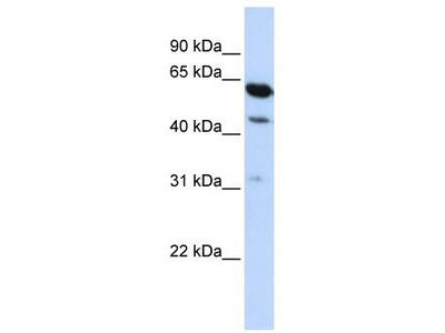 Rabbit Polyclonal Anti-HEPACAM2 Antibody