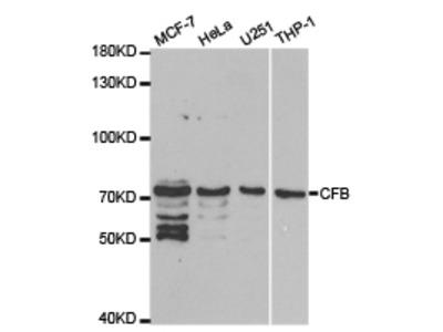 Rabbit anti-CFB Polyclonal Antibody