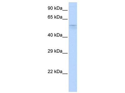 Rabbit Polyclonal Anti-TRIM39 Antibody