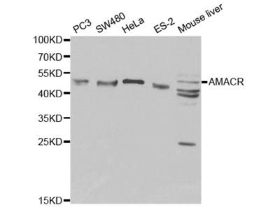 Rabbit anti-AMACR Polyclonal Antibody