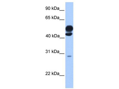 Rabbit Polyclonal Anti-KLC3 Antibody