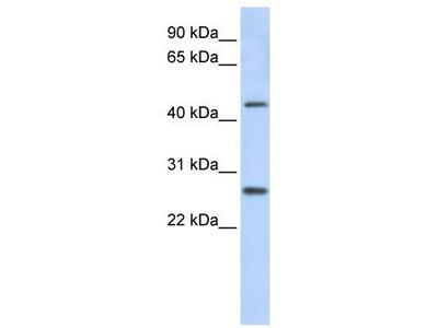 Rabbit Polyclonal Anti-PRAMEF10 Antibody
