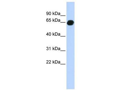 Rabbit polyclonal Anti-B3GALNT2 Antibody
