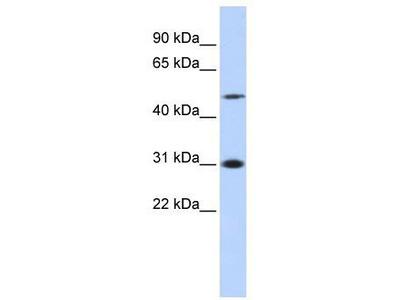 Rabbit Polyclonal Anti-ING3 Antibody