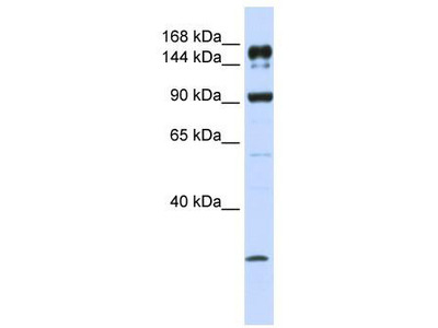 Rabbit Polyclonal Anti-ABCA5 Antibody