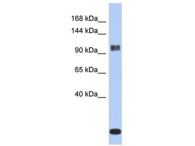Rabbit Polyclonal Anti-ATXN7 Antibody