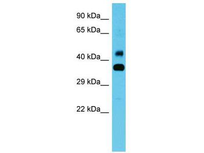 Rabbit Polyclonal Anti-CBWD1 Antibody
