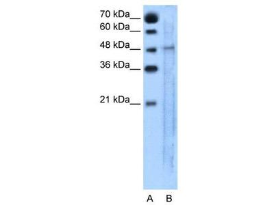 Rabbit Polyclonal Anti-SLC25A46 Antibody