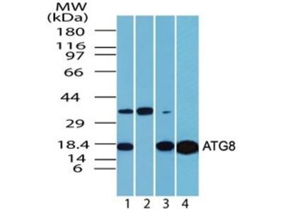 Rabbit Polyclonal LC3/MAP1LC3A Antibody