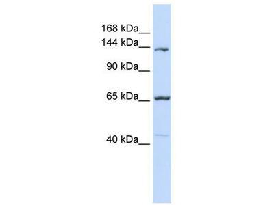 Rabbit Polyclonal Anti-PCDH12 Antibody