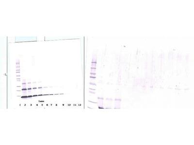 Anti-Human PTHrP Rabbit Polyclonal Antibody