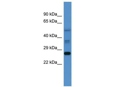 Rabbit Polyclonal Anti-COMMD2 Antibody - middle region
