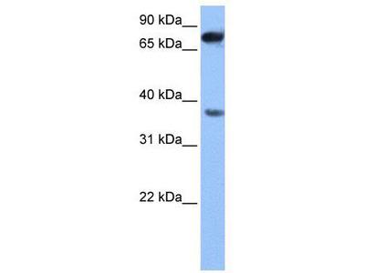 Rabbit Polyclonal Anti-ZCCHC12 Antibody