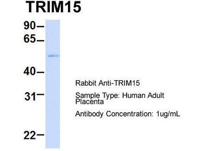 Rabbit Polyclonal Anti-TRIM15 Antibody - middle region