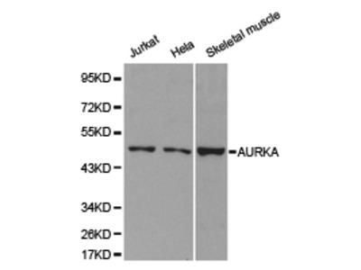 AURKA Rabbit Polyclonal Antibody