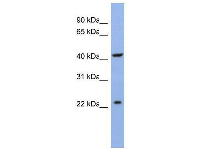 Rabbit Polyclonal Anti-SLC35F1 Antibody