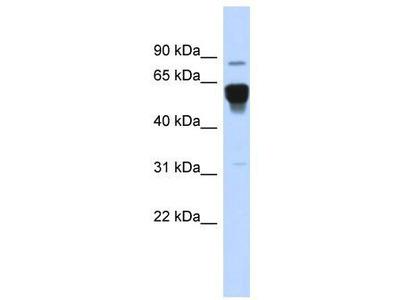 Rabbit Polyclonal Anti-NR4A2 Antibody