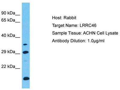 Rabbit Polyclonal Anti-LRRC46 Antibody