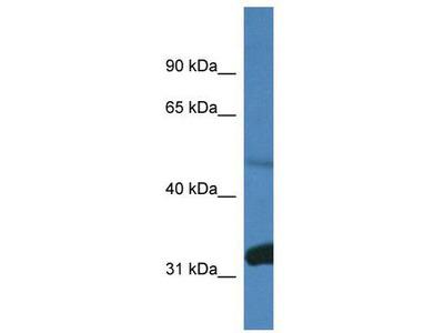 Rabbit Polyclonal Anti-Ppp2r2d Antibody