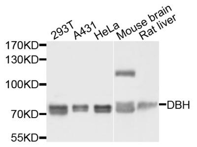 DBH Rabbit Polyclonal Antibody