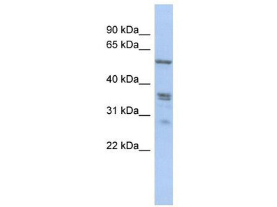 Rabbit Polyclonal Anti-SLC38A2 Antibody