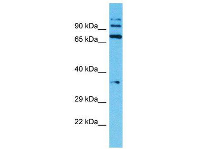 Rabbit Polyclonal Anti-TMPRSS7 Antibody