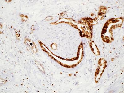 Mouse Monoclonal S100P Antibody