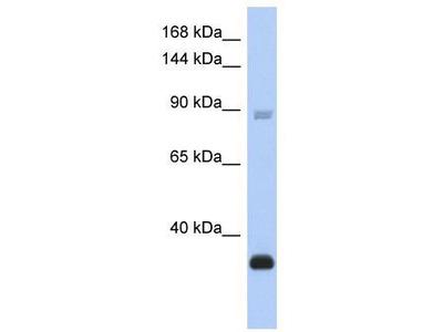 Rabbit Polyclonal Anti-BCL11B Antibody