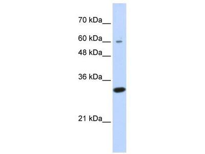 Rabbit polyclonal Anti-LRRC57 Antibody