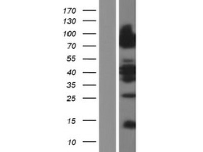 Lipolysis Stimulated Lipoprotein Receptor (LSR) (NM_205834) Human Over-expression Lysate