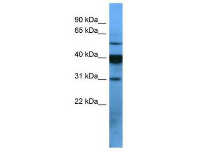 Rabbit Polyclonal Anti-OR2T1 Antibody