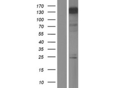 Transient overexpression lysate of myeloid/lymphoid or mixed-lineage leukemia (trithorax homolog, Drosophila); translocated to, 6 (MLLT6)