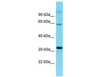 Rabbit Polyclonal Anti-CWF19L1 Antibody