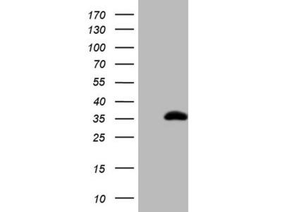 CITED1 mouse monoclonal antibody, clone OTI1E11 (formerly 1E11)