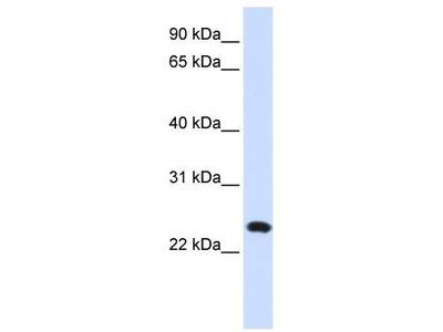 Rabbit Polyclonal Anti-C20orf103 Antibody