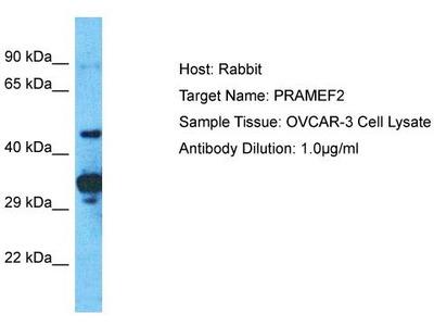 Rabbit Polyclonal Anti-PRAMEF2 Antibody