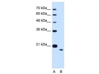 Rabbit Polyclonal Anti-TMEM91 Antibody