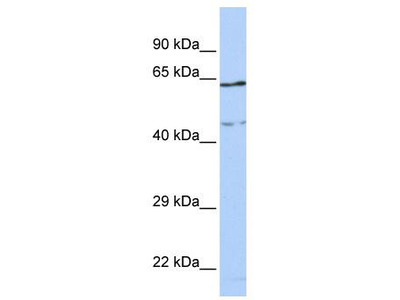 Rabbit Polyclonal Anti-CCDC74A Antibody - middle region