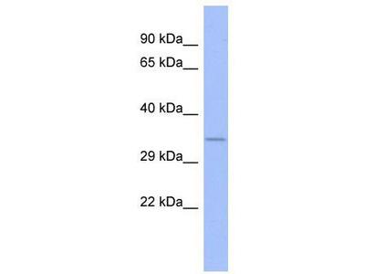Rabbit Polyclonal Anti-FUSIP1 Antibody