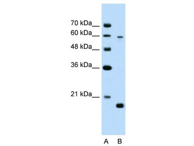Rabbit Polyclonal Anti-SLC38A4 Antibody