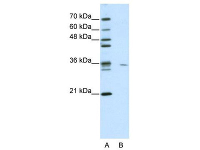 Rabbit Polyclonal Anti-MDS032 Antibody