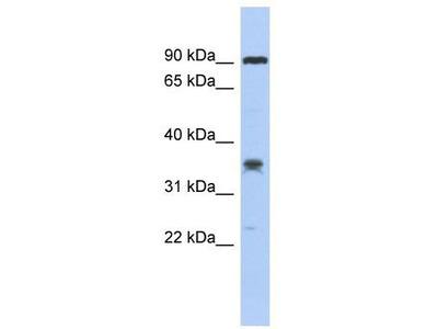 Rabbit Polyclonal Anti-LRRC73 Antibody