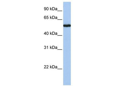 Rabbit Polyclonal Anti-SLC38A9 Antibody