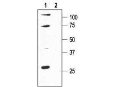 Rabbit polyclonal Anti-KCa2.1 (SK1, SKCa1)