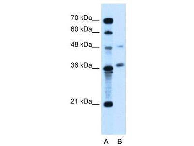 Rabbit Polyclonal Anti-ARMCX6 Antibody