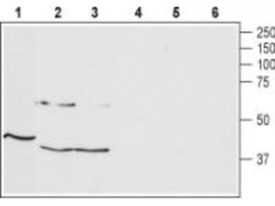 Rabbit polyclonal Anti-Thyrotropin-Releasing Hormone Receptor 1