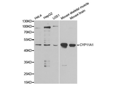 CYP11A1 Rabbit Polyclonal Antibody