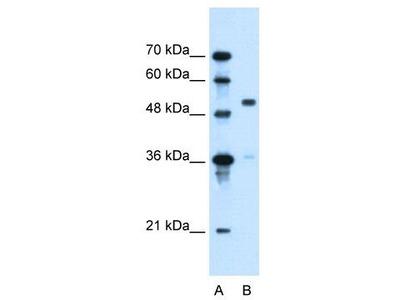 Rabbit Polyclonal Anti-SLC37A3 Antibody