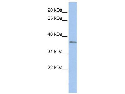 Rabbit Polyclonal Anti-SIX3 Antibody