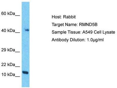 Rabbit Polyclonal Anti-RMND5B Antibody